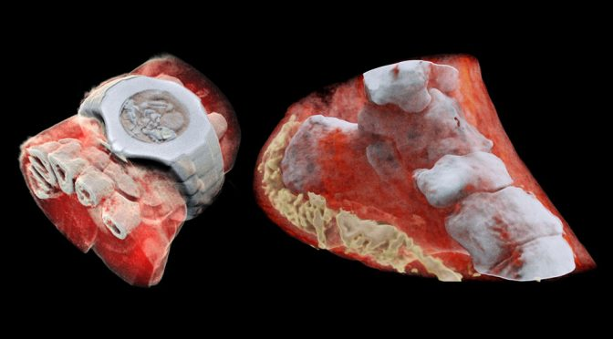 Mars Color CT Scan Shows The True Color Of Human's Inner Beauty