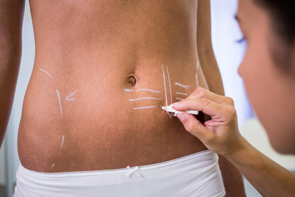 5 Facts About Liposuction Before Getting The Procedure